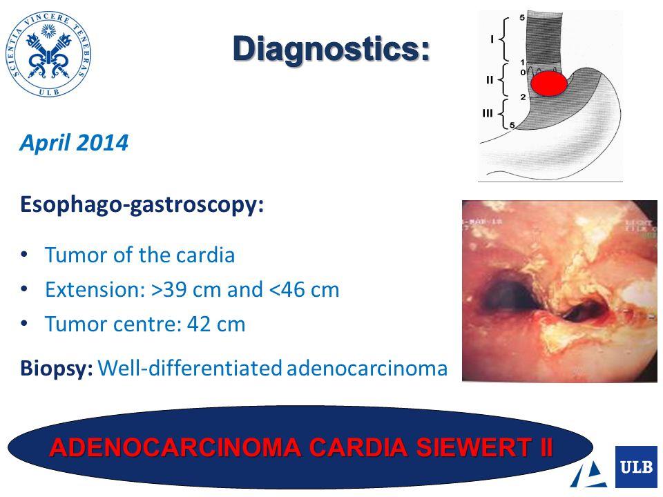 ADENOCARCINOMA CARDIA SIEWERT II