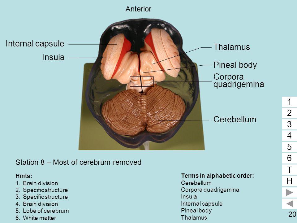 Station 8 – Most of cerebrum removed