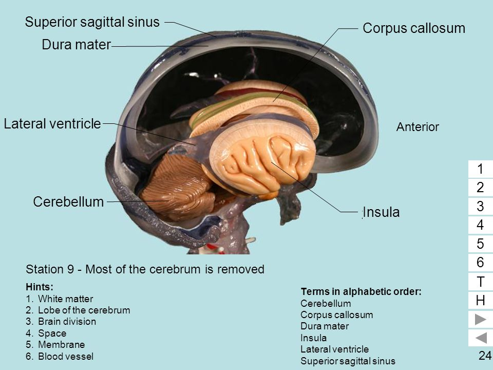 Station 9 - Most of the cerebrum is removed