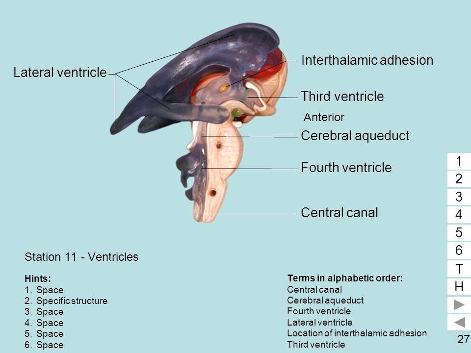 Interthalamic adhesion 2 Lateral ventricle 1