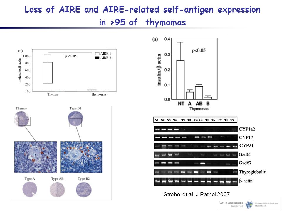 Loss of AIRE and AIRE-related self-antigen expression