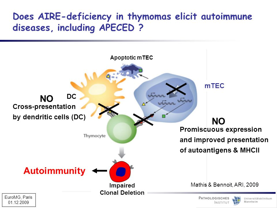 Does AIRE-deficiency in thymomas elicit autoimmune