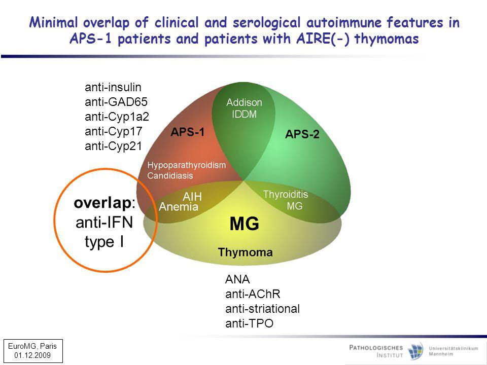 MG overlap: anti-IFN type I