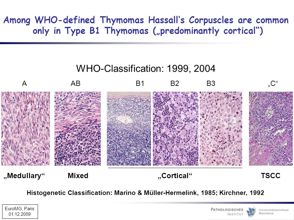 Among WHO-defined Thymomas Hassall's Corpuscles are common