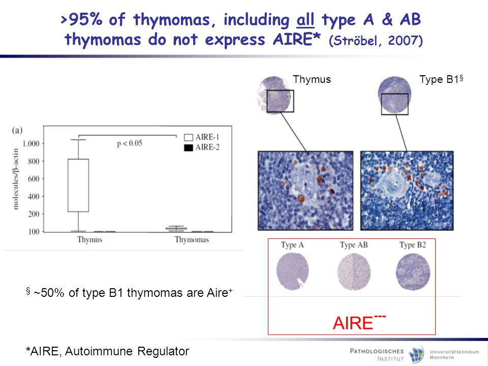AIRE--- >95% of thymomas, including all type A & AB