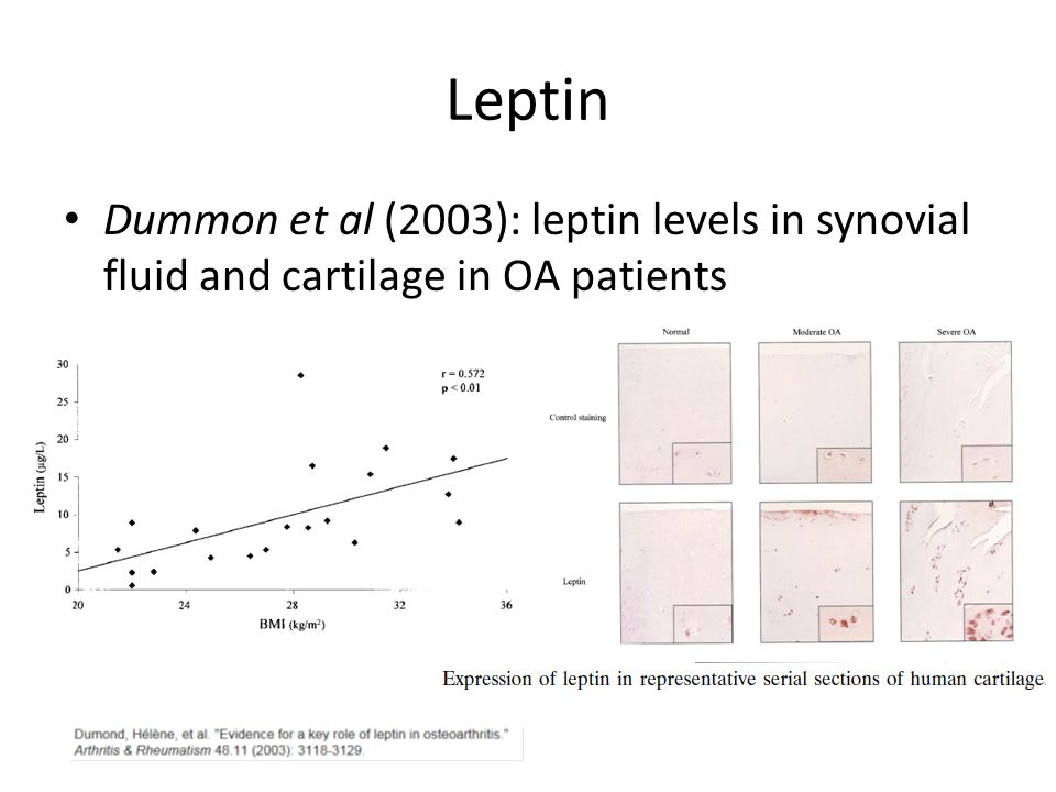 Leptin Dummon et al (2003): leptin levels in synovial fluid and cartilage in OA patients