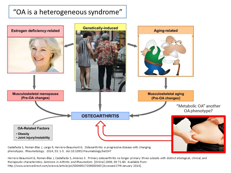 OA is a heterogeneous syndrome
