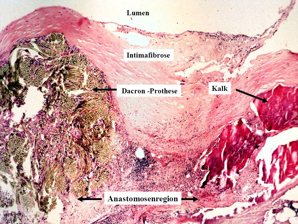 Lumen Intimafibrose Kalk Dacron -Prothese Anastomosenregion