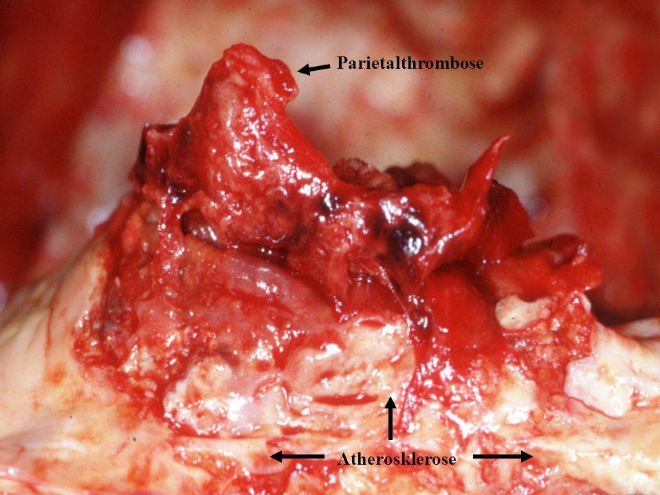 Parietalthrombose Atherosklerose