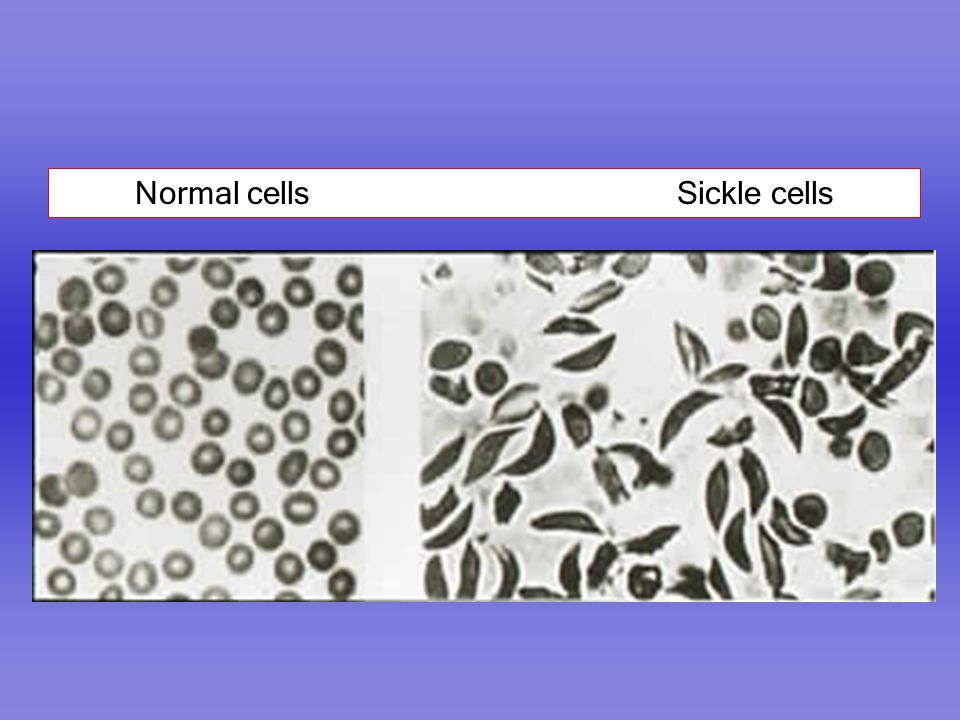Normal cells Sickle cells