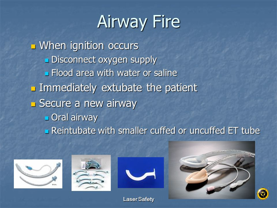 Airway Fire When ignition occurs Immediately extubate the patient