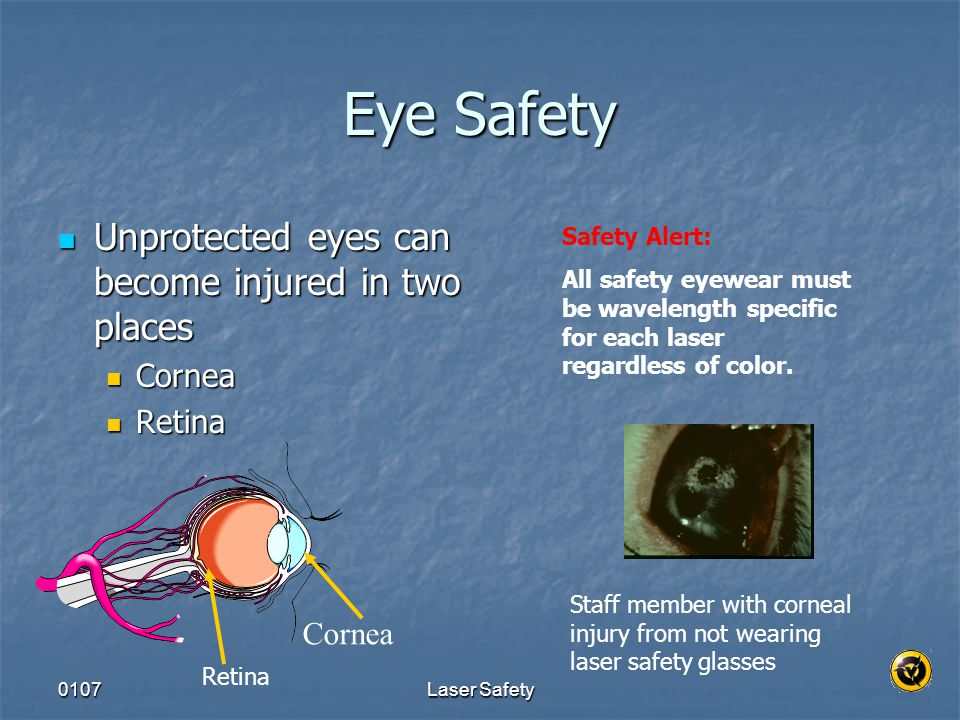 Eye Safety Unprotected eyes can become injured in two places Cornea
