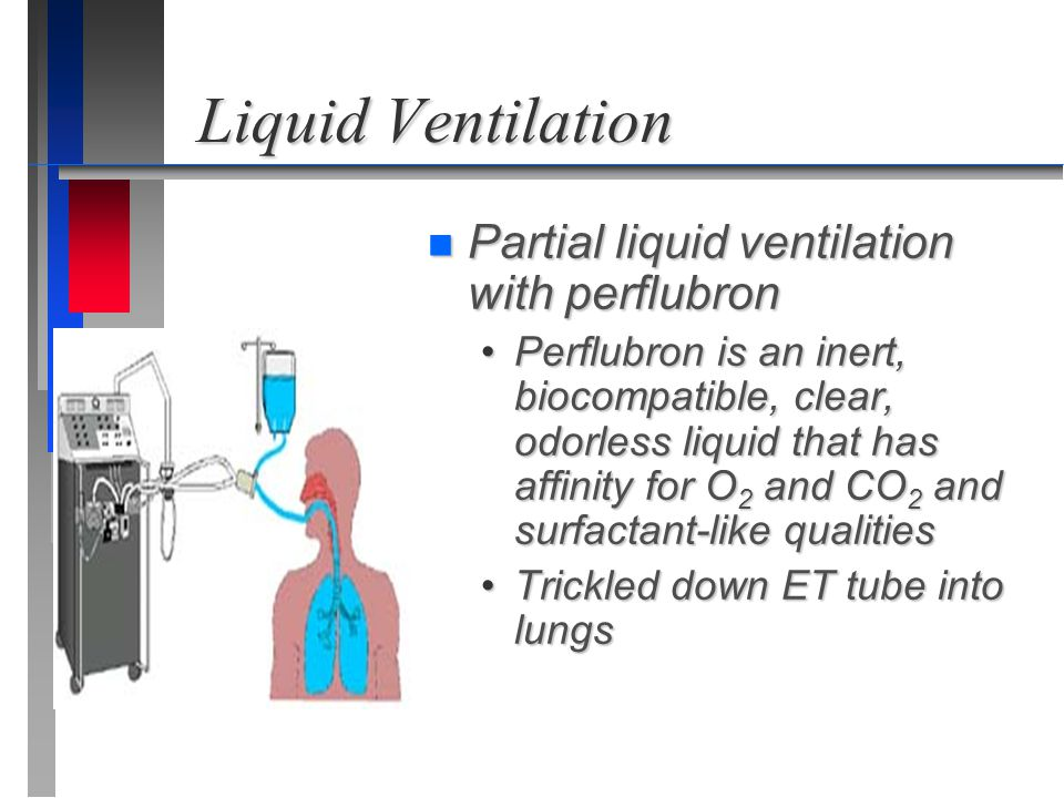 Liquid Ventilation Partial liquid ventilation with perflubron