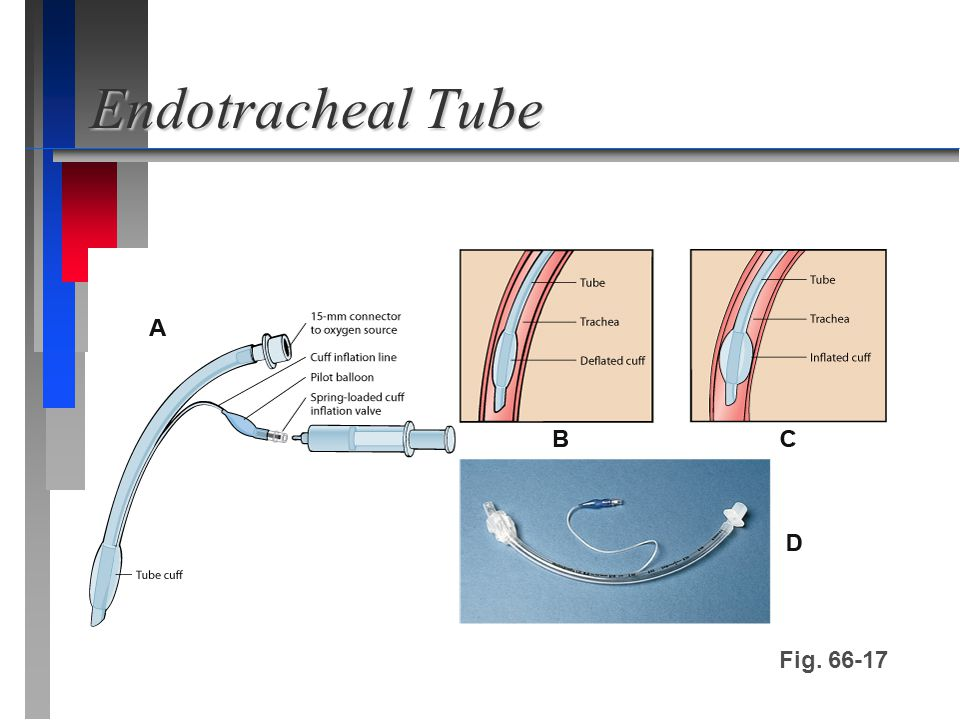 Endotracheal Tube Fig. 66-17