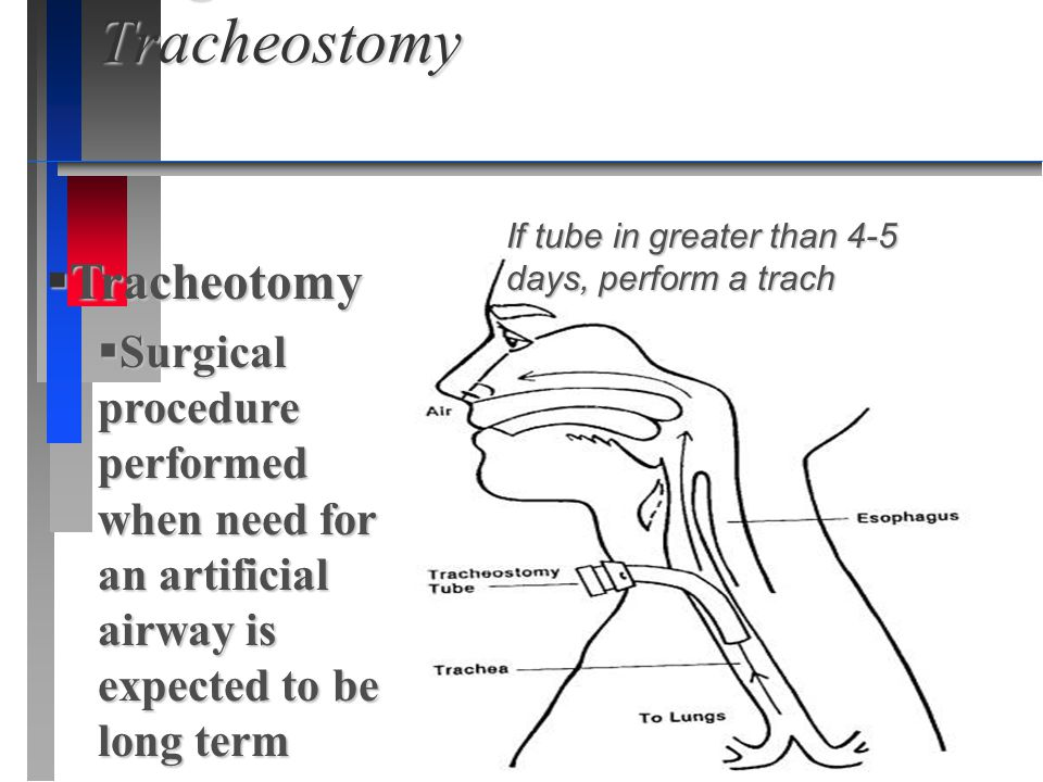 Surgical Intervention-Tracheostomy