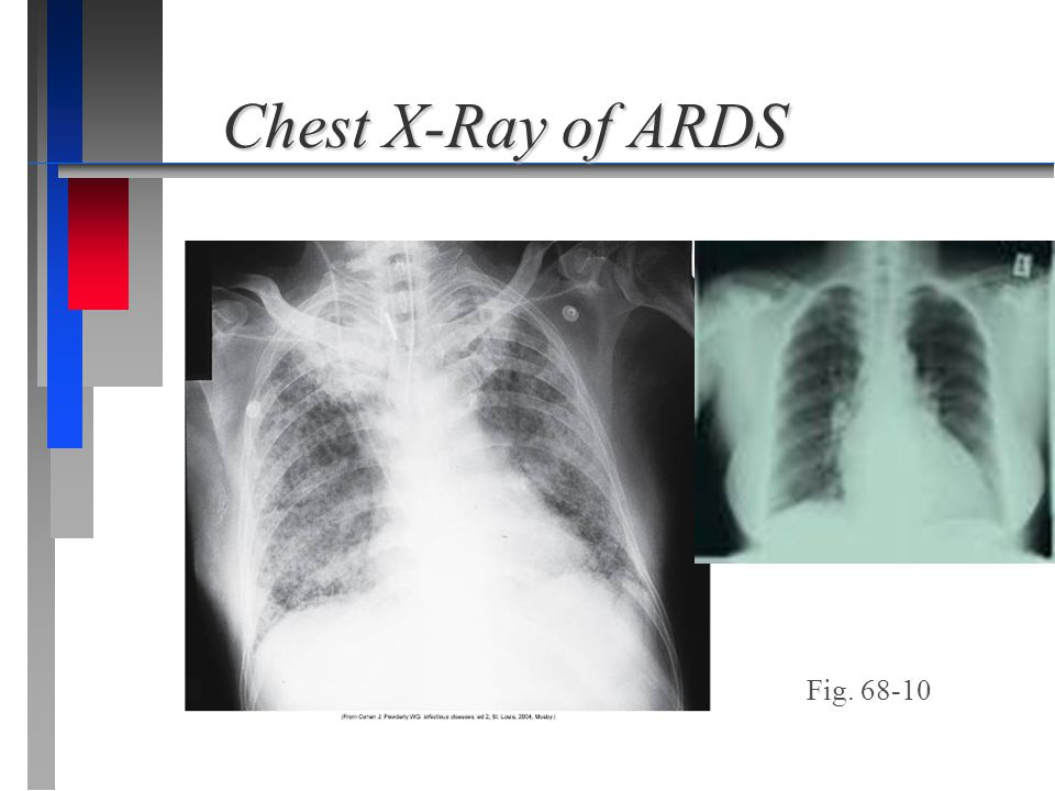 Chest X-Ray of ARDS Fig. 68-10