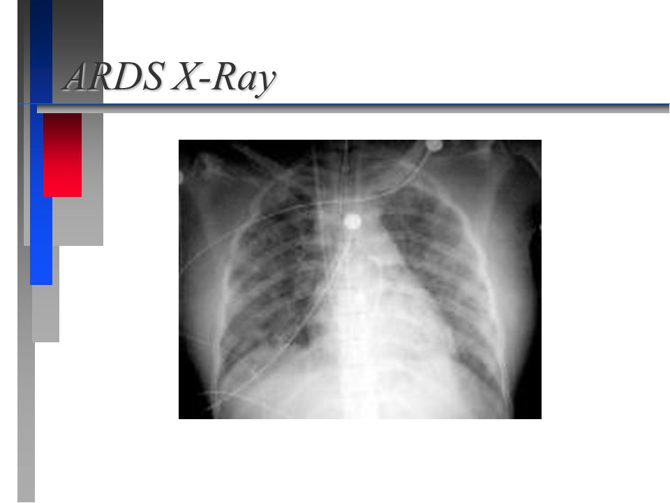 ARDS X-Ray