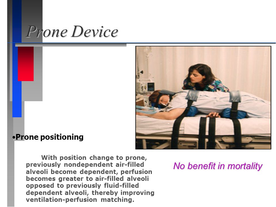 Prone Device No benefit in mortality Prone positioning