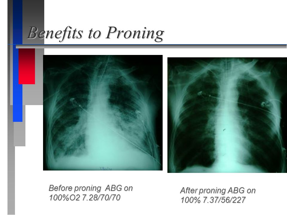 Benefits to Proning Before proning ABG on 100%O2 7.28/70/70