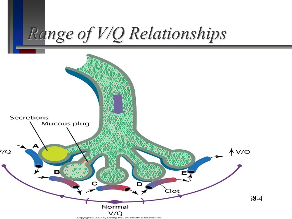 Range of V/Q Relationships