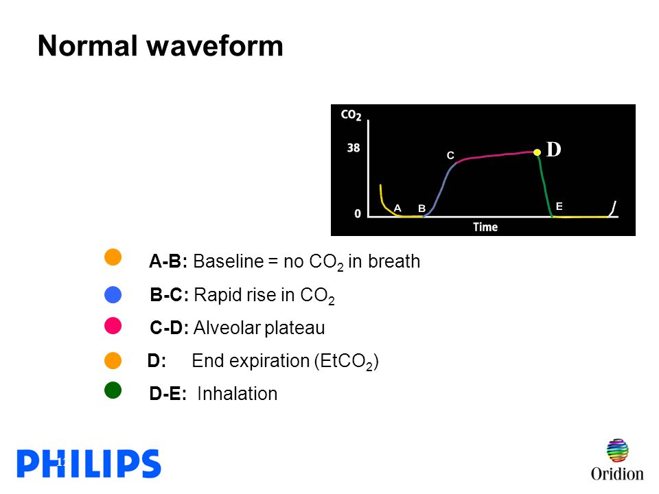 Normal waveform D A-B: Baseline = no CO2 in breath