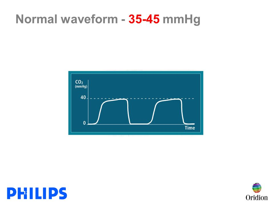 Normal waveform - 35-45 mmHg