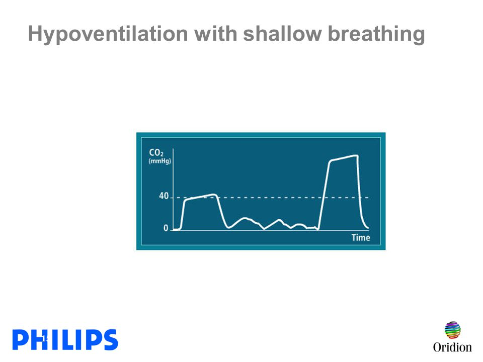 Hypoventilation with shallow breathing