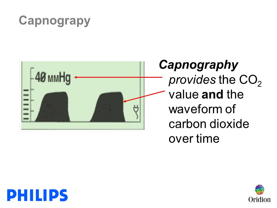Capnograpy Capnography provides the CO2 value and the waveform of carbon dioxide over time. Teaching Tip: