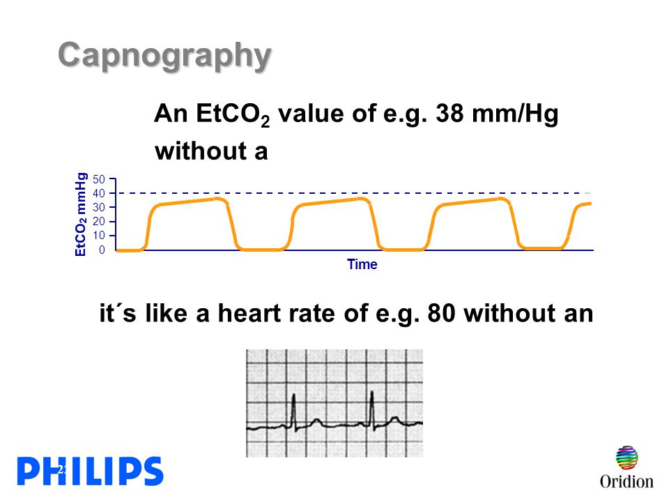 Capnography An EtCO2 value of e.g. 38 mm/Hg without a