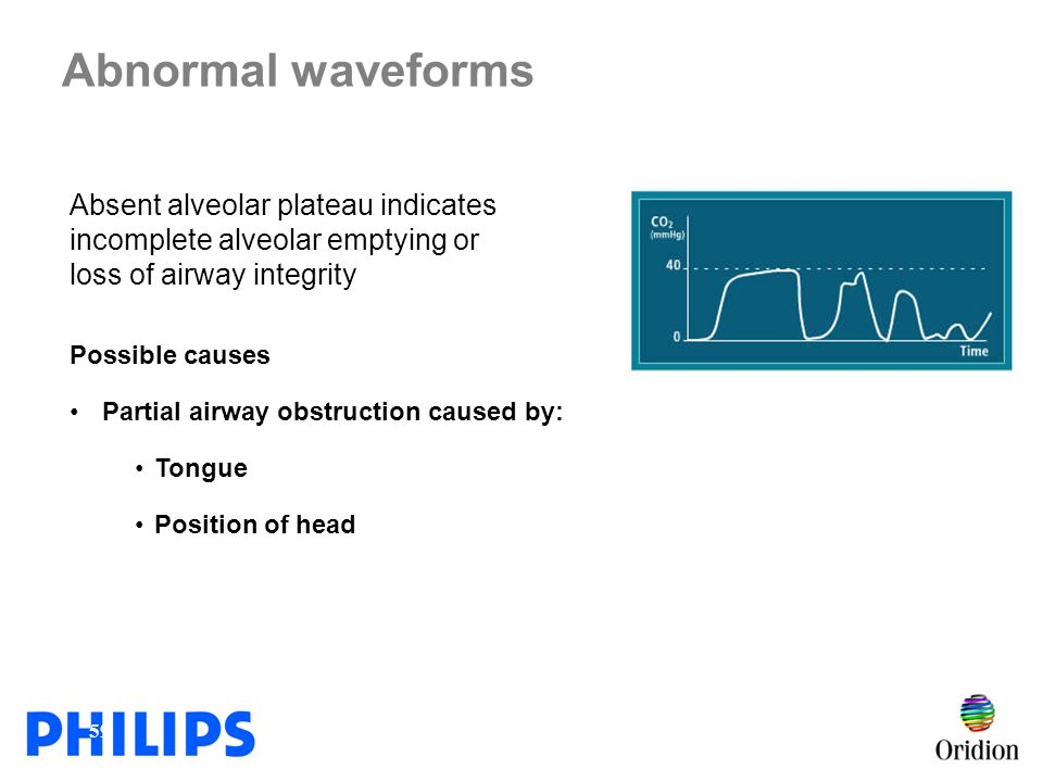 Abnormal waveforms Absent alveolar plateau indicates incomplete alveolar emptying or loss of airway integrity.