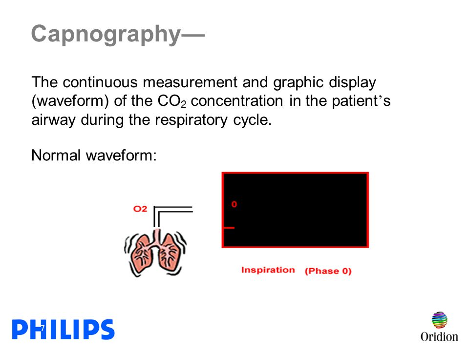 Capnography— The continuous measurement and graphic display (waveform) of the CO2 concentration in the patient's airway during the respiratory cycle.