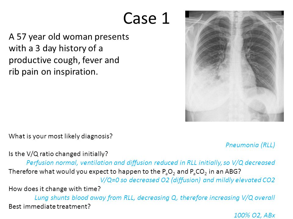 Case 1 A 57 year old woman presents with a 3 day history of a productive cough, fever and rib pain on inspiration.