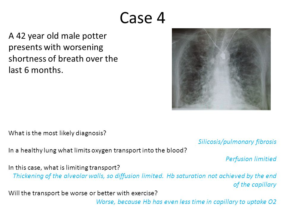 Case 4 A 42 year old male potter presents with worsening shortness of breath over the last 6 months.