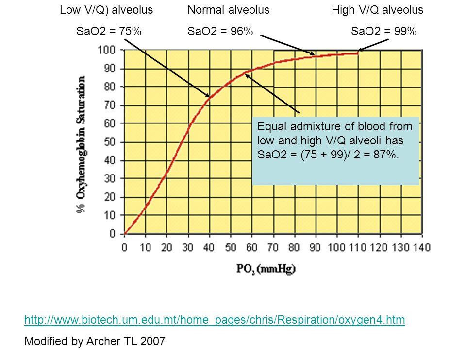 Low V/Q) alveolus SaO2 = 75% Normal alveolus. SaO2 = 96% High V/Q alveolus. SaO2 = 99%