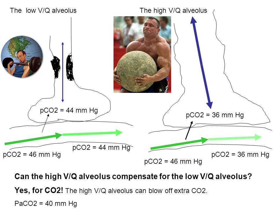 Can the high V/Q alveolus compensate for the low V/Q alveolus