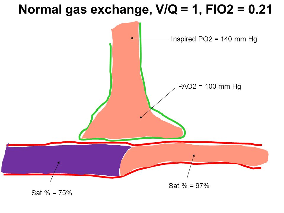 Normal gas exchange, V/Q = 1, FIO2 = 0.21
