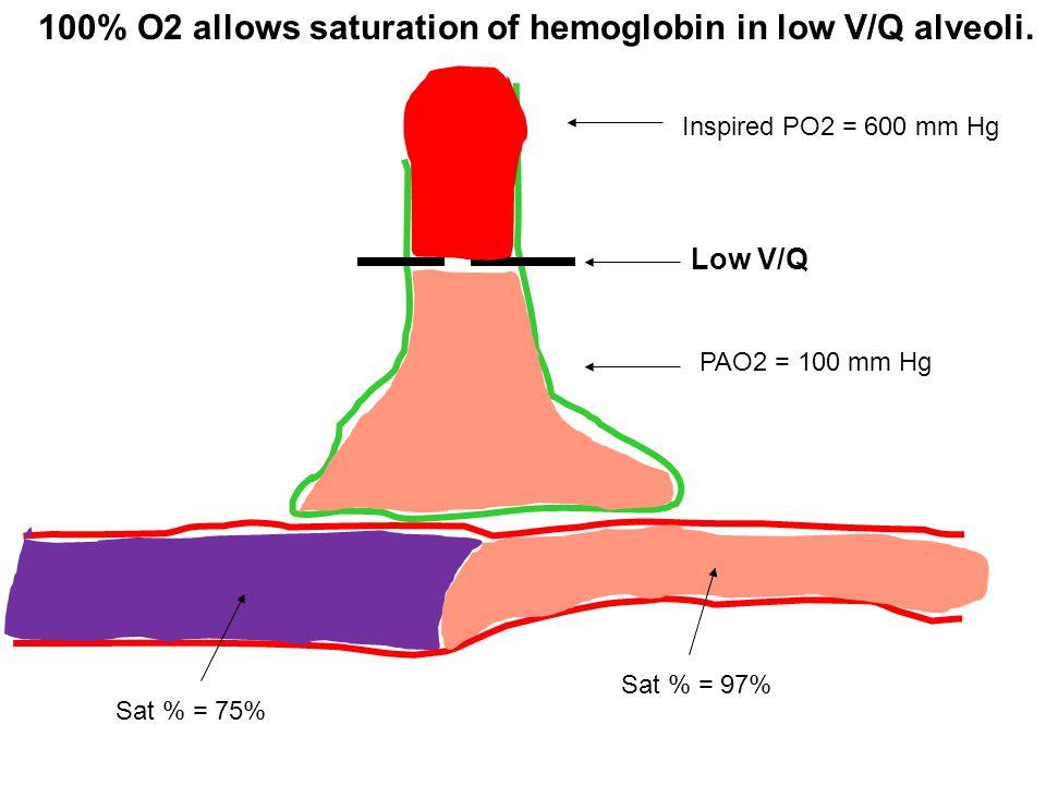 100% O2 allows saturation of hemoglobin in low V/Q alveoli.