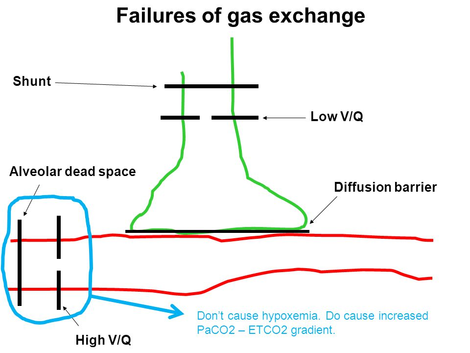 Failures of gas exchange