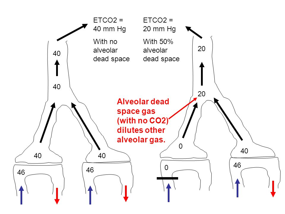 Alveolar dead space gas (with no CO2) dilutes other alveolar gas.
