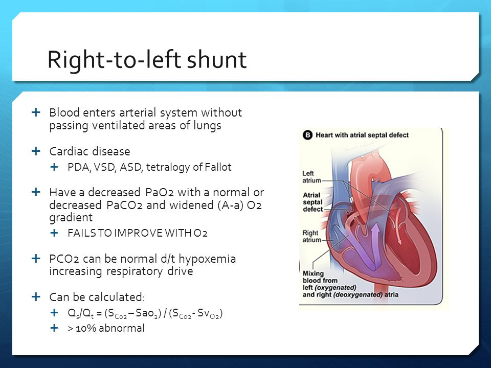 Right-to-left shunt Blood enters arterial system without passing ventilated areas of lungs. Cardiac disease.