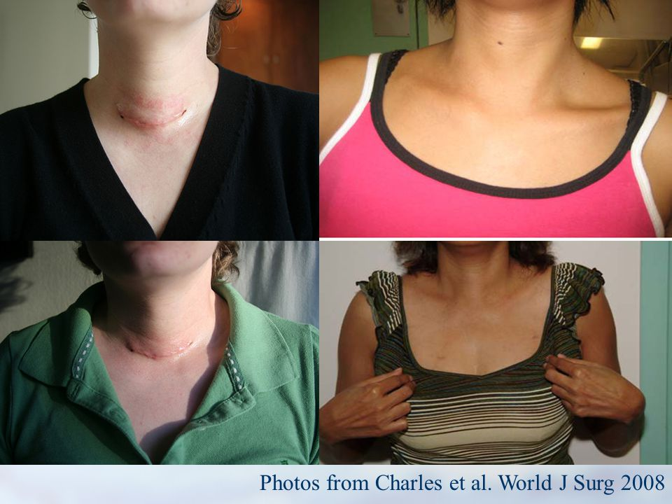 Photos from Charles et al. World J Surg 2008