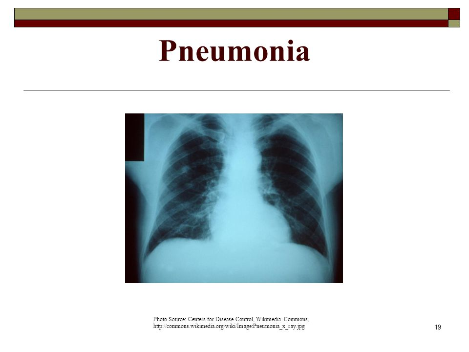 Pneumonia Photo Source: Centers for Disease Control, Wikimedia Commons, http://commons.wikimedia.org/wiki/Image:Pneumonia_x_ray.jpg.
