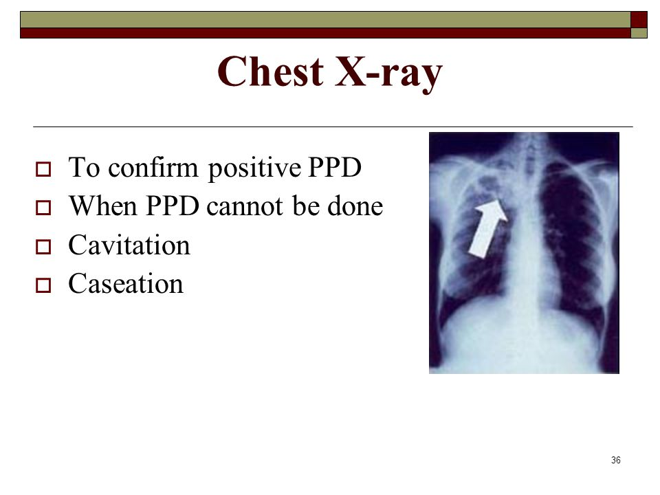 Chest X-ray To confirm positive PPD When PPD cannot be done Cavitation