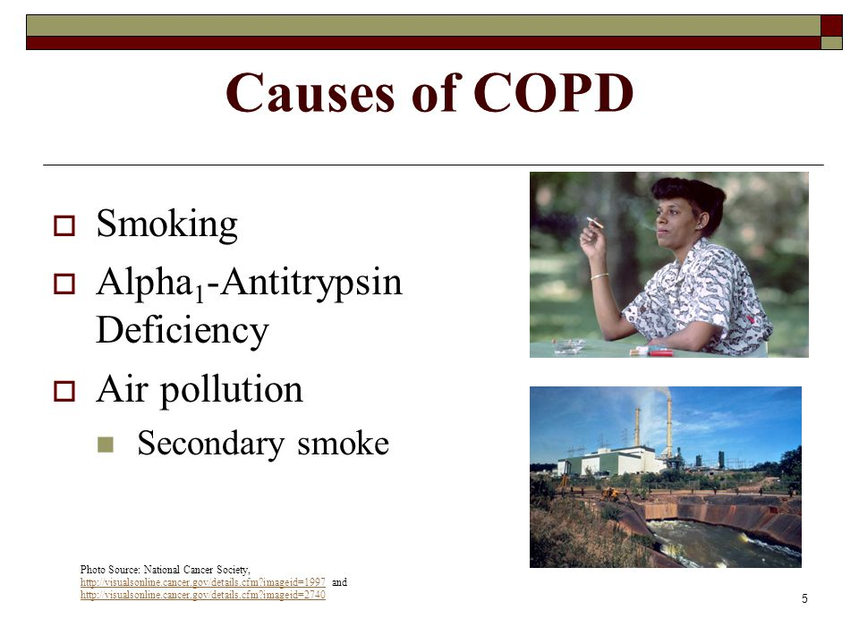 Causes of COPD Smoking Alpha1-Antitrypsin Deficiency Air pollution