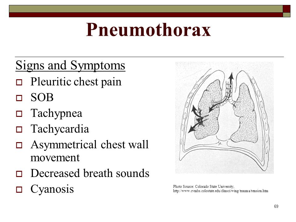 Pneumothorax Signs and Symptoms Pleuritic chest pain SOB Tachypnea