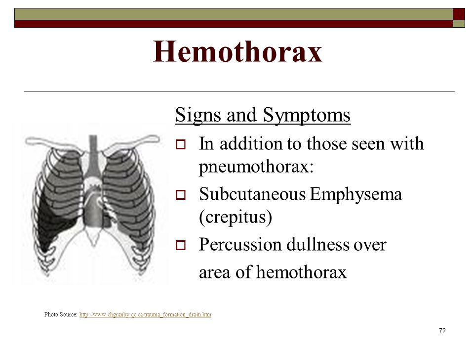 Hemothorax Signs and Symptoms