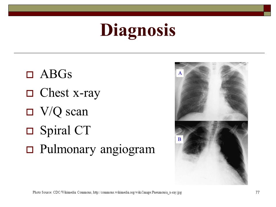 Diagnosis ABGs Chest x-ray V/Q scan Spiral CT Pulmonary angiogram