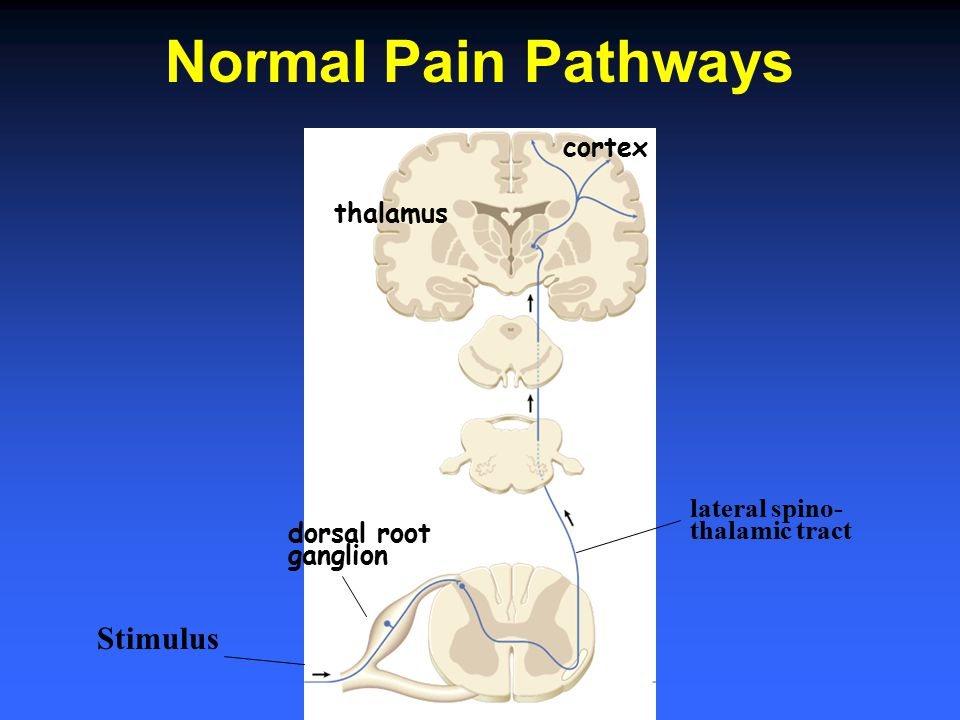 Normal Pain Pathways Stimulus cortex thalamus lateral spino-
