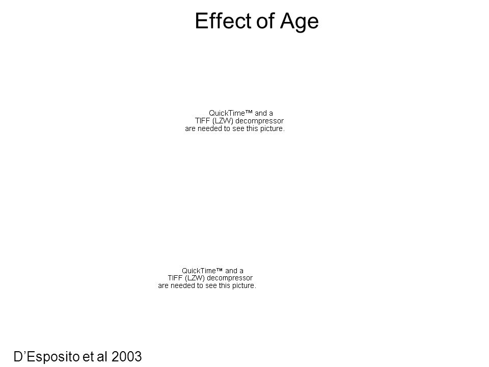 Effect of Age D'Esposito et al 2003
