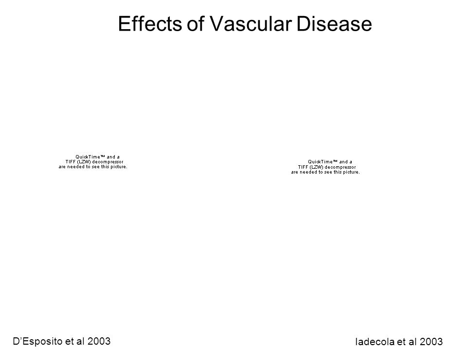 Effects of Vascular Disease